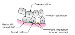 overeruption